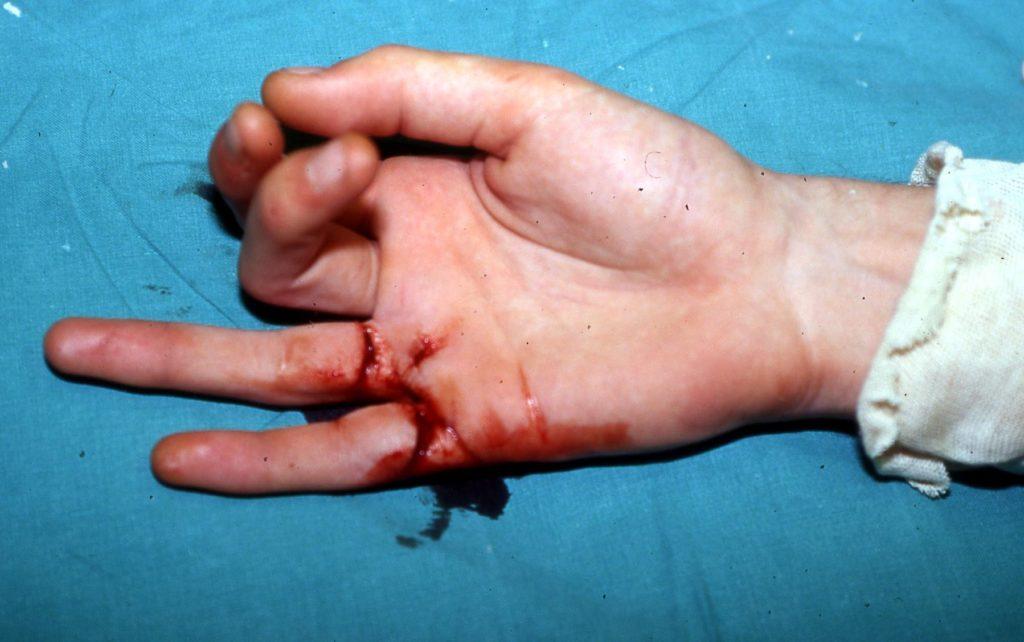 Αρθρίτιδα Βασικής Άρθρωσης του Αντίχειρα