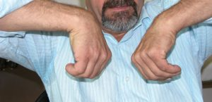 Αρθρίτιδα Καρπού (καθίζιση)