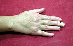 Ρευματοειδής Αρθρίτιδα στο Χέρι