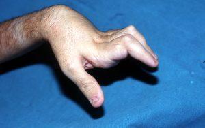 Παραμόρφωση Δίκην Κομβιοδόχης (Boutonniere Deformity)