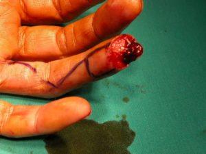 Τραυματισμοί Ακροδακτύλων (Tip injuries)