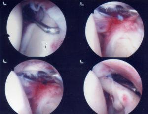Τραυματισμοί της Εκφύσεως της Μακράς Κεφαλής του Δικεφάλου - SLAP Lesion