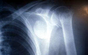 Συντιπτικό κάταγμα - εξάρθρημα τηε κεφαλής του βραχιονίου σε γυναίκα 52 ετών