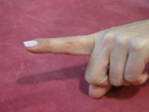 Παραμόρφωση Δίκην Κομβιοδόχης (Boutoniere Deformity)