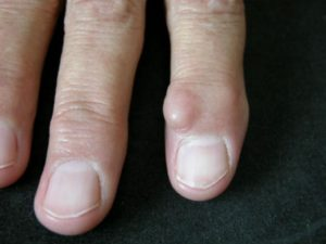 Αρθρίτιδες στο Χέρι