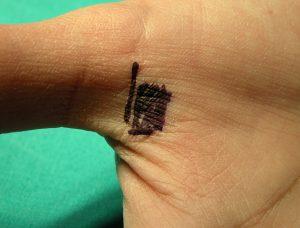 Εκτινασσόμενο Δάκτυλο & Αντίχειρας