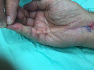 Νόσος Dupuytren