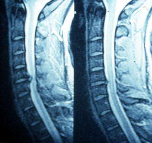 Αντανακλαστικός πόνος στον ώμο