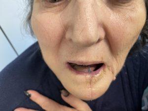 15 μέρες μετεγχειρητικά διακρίνεται ο κρημνός δέρματος στη στοματική κοιλότητα