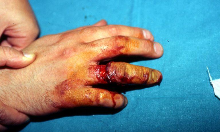 Τραυματισμοί τύπου απογαντισμού των δακτύλων (RING  AVULSION  INJURIES)