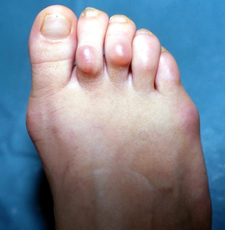 Σφυροδακτυλία στο Πόδι (Hammer Toe)