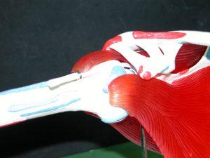 Περιαθρίτιδα Ώμου