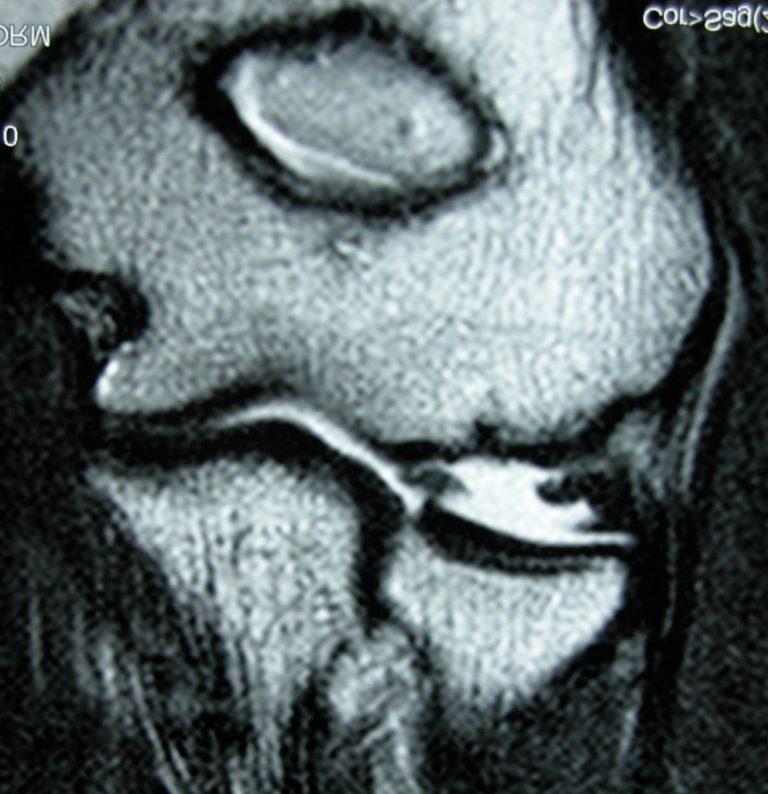 Σύνδρομο Υμενικής Πτυχής Αγκώνα (Plica of the Elbow)