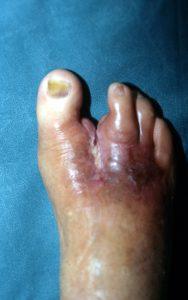 Διαβητικό Πόδι και Έλκη