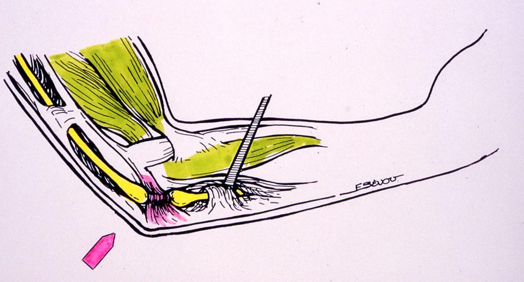 Ωλένια Νευρίτιδα στον Αγκώνα